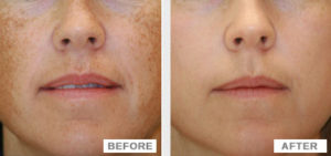 Before and after image of skin peel