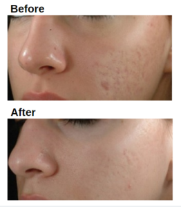 before and after dermafiller Collagen Wrinkle Filler