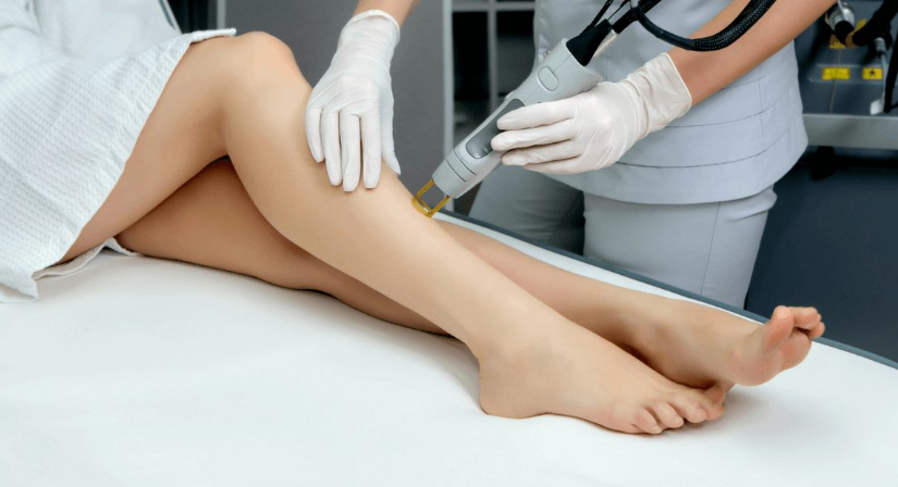 Laser Hair Removal in London
