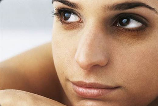 Dark Circles Under The Eyes & Their Medical Treatment