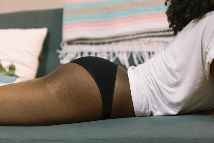 6 tips to remove your stretch marks